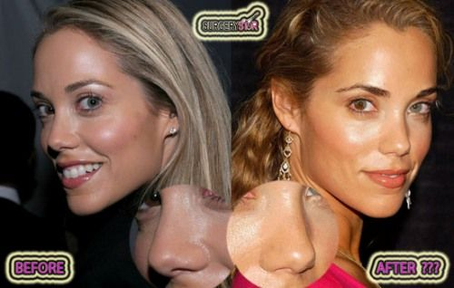Elizabeth Berkley nose job before after