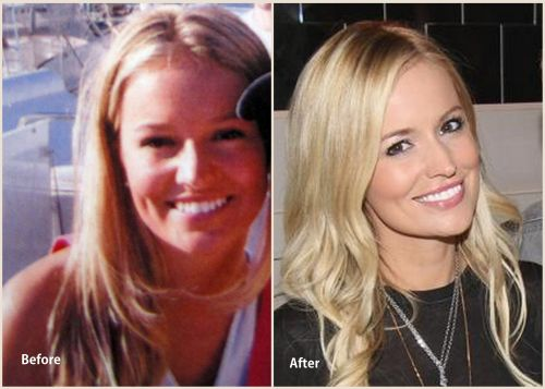 Emily Maynard plastic surgery before and after