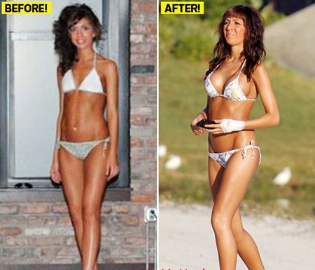 Farrah Abraham breast implants before after