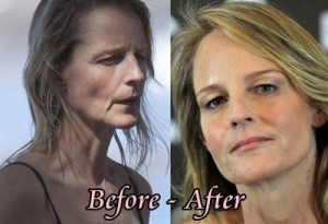 Helen Hunt Plastic Surgery Went Awry