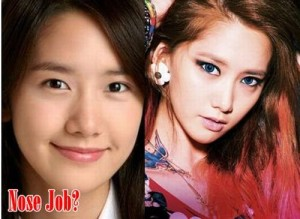 Im Yoona Plastic Surgery – Artificial Beauty?