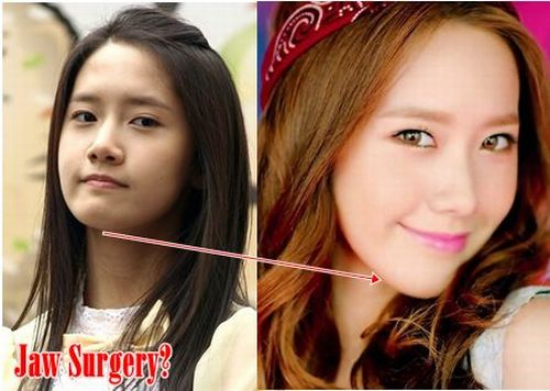 Im Yoona plastic surgery before and after