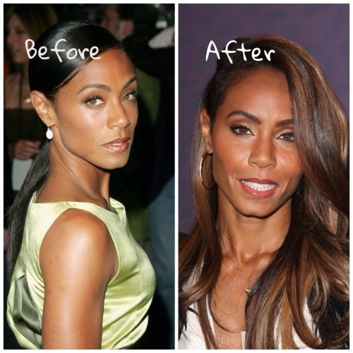 Jada Pinkett Smith plastic surgery before and after picture