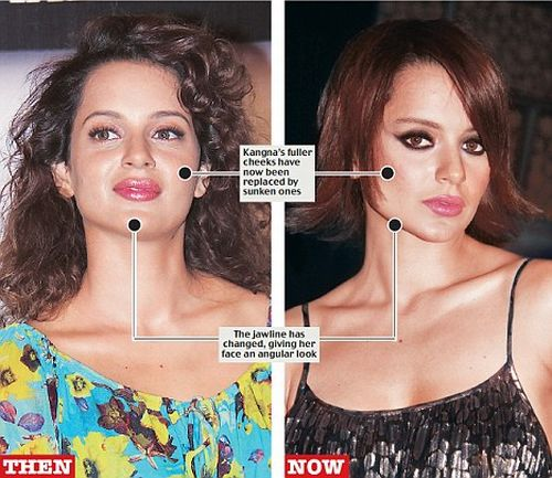 Kangana Ranaut plastic surgery photo