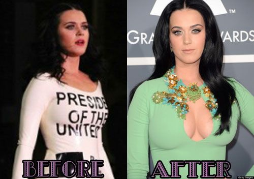 Katy Perry plastic surgery photo