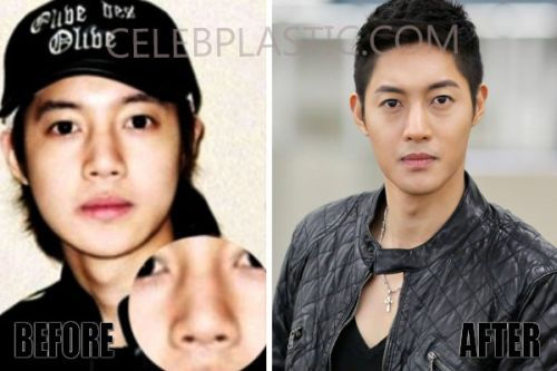 Kim Hyun Joong nose job before and after