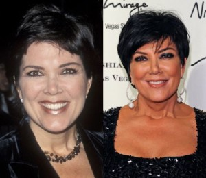The Truth About Kris Jenner Plastic Surgery