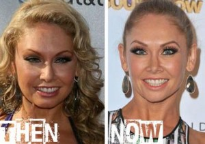 Kym Johnson Plastic Surgery – Botox Injections and Eyebrow Lift