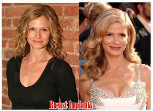 Kyra Sedgwick breast implants