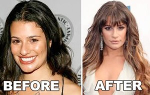 Lea Michele Nose Job Rumors True?