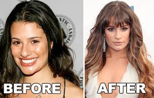 Lea Michele nose job before after
