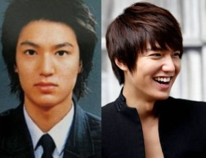 Lee Min Ho Plastic Surgery Secrets
