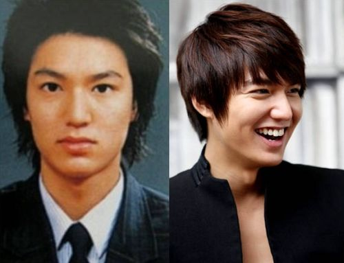 Lee Min Ho plastic surgery before and after