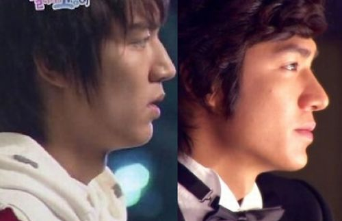 Lee Min Ho nose job before and after