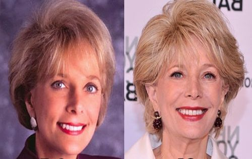 Leslie Stahl plastic surgery photo
