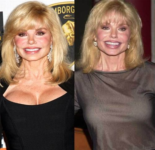 Loni Anderson breast implants pic