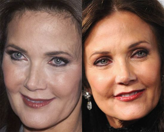 Lynda Carter plastic surgery before and after