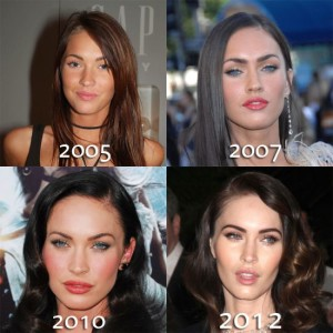 Megan Fox Plastic Surgery – She May Not Be A Natural Beauty Afterall