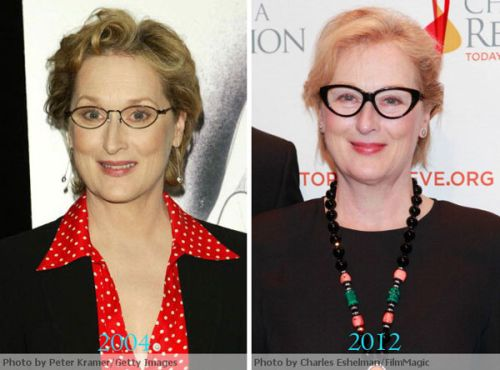 Meryl Streep plastic surgery photo