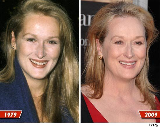 Meryl Streep plastic surgery before after