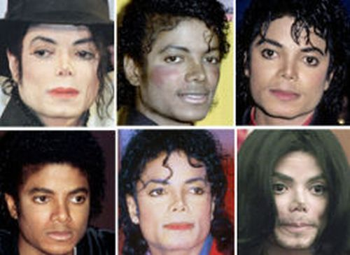 Michael Jackson nose job photos