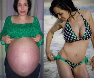 Nadya Suleman Plastic Surgery Dismay