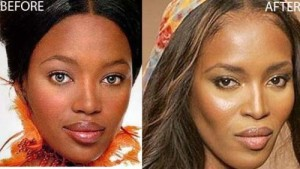 Has Naomi Campbell Had Plastic Surgery – Before and After Photos