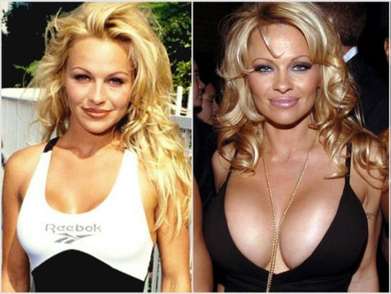 Pamela Anderson plastic surgery before and after