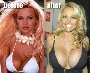 Pamela Anderson Plastic Surgery – Did She Really Need It?