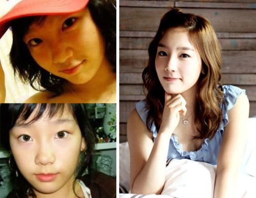 SNSD plastic surgery photos