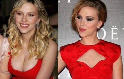 Scarlett Johansson after breast reduction