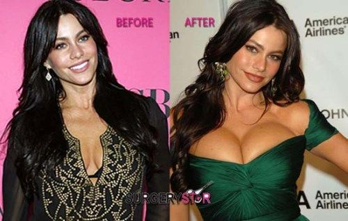 Sofia Vergara breast implant before and after