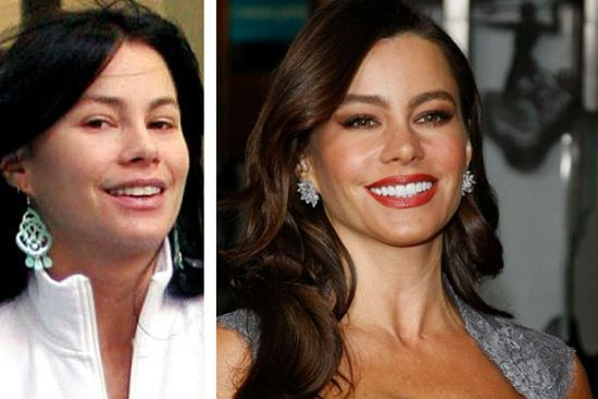 Sofia Vergara plastic surgery before and after