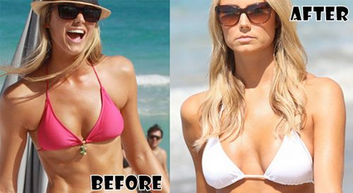 Stacy Keibler plastic surgery before and after