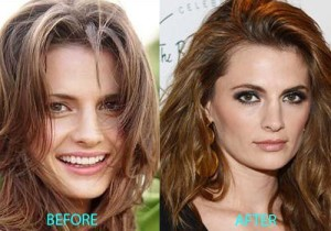 Stana Katic Nose Job – Does It Make Her Look Better?