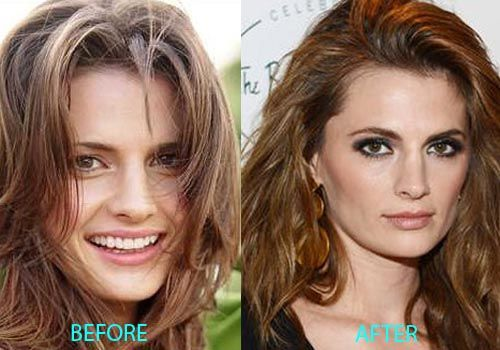 Stana Katic nose job before after