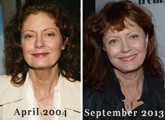Susan Sarandon plastic surgery pic