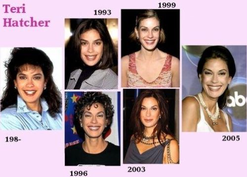Teri Hatcher plastic surgery