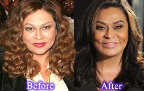 Tina Knowles plastic surgery photo