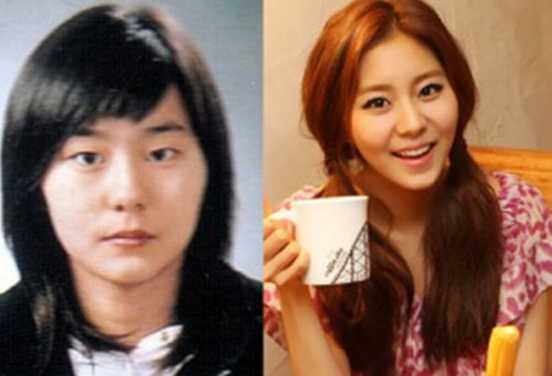 Uee plastic surgery before and after