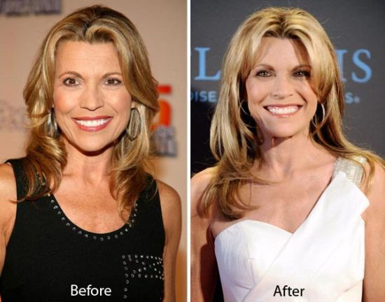 Vanna-White-plastic-surgery-before-and-after