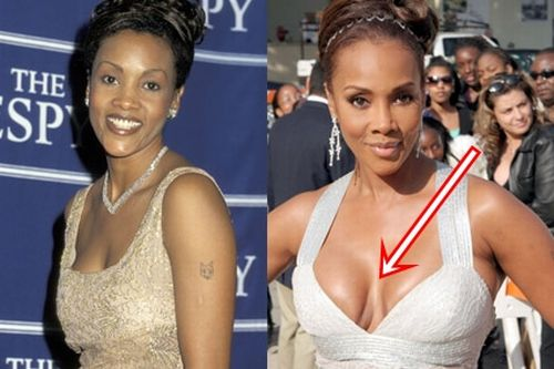 Vivica Fox plastic surgery gone wrong