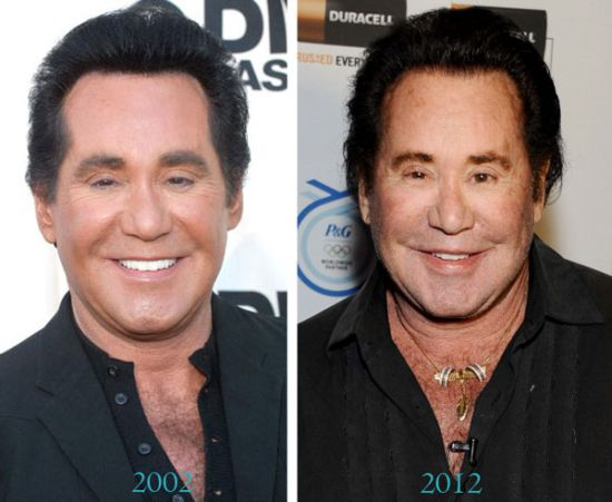 Wayne Newton plastic surgery photo