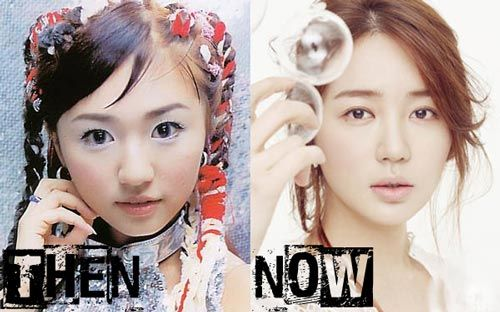 Yoon Eun Hye plastic surgery photo