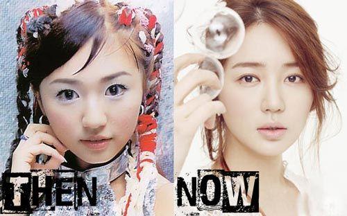 Yoon Eun Hye plastic surgery photo