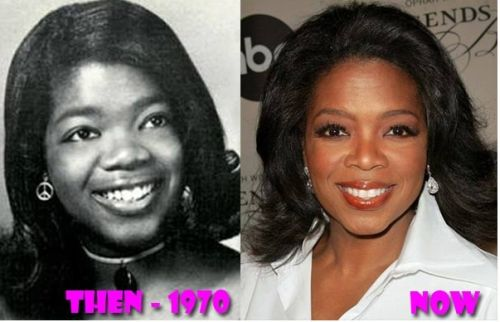 Oprah Winfrey before after