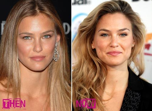 Bar Rafaeli nose job before after