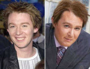 Clay Aiken Plastic Surgery – Accepted Bravely By the Star