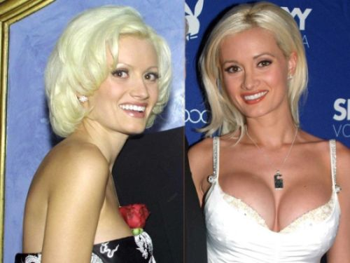 Holly Madison breast implants before and after