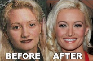 Holly Madison Plastic Surgery – Too Good to Ignore